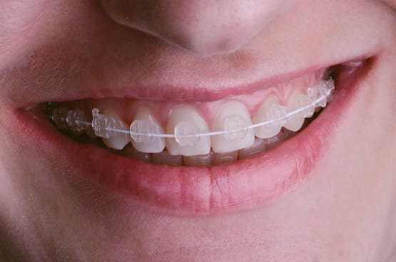 Braces-Dental-Treatment-Footsray-Focus-on-Dental